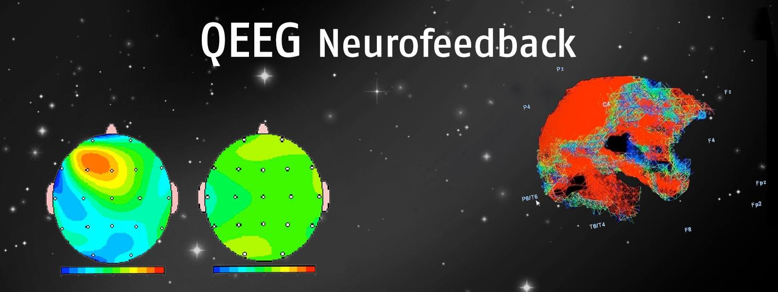 banner_brainmap_02.jpg